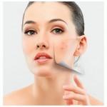 Levadura de cerveza para combatir el acné