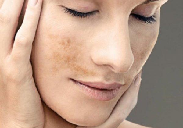 Elimina las manchas faciales este verano