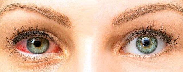 Síntomas y tratamiento del ojo seco